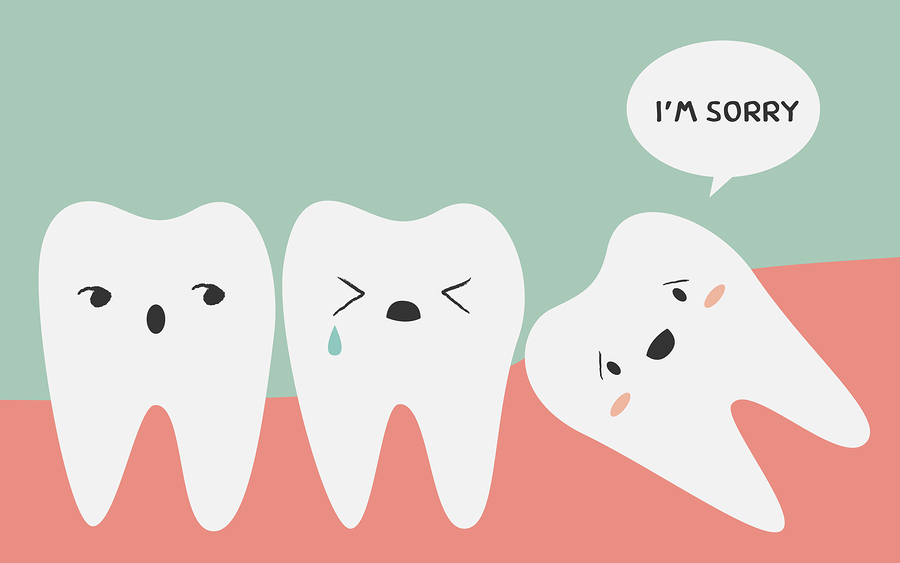 Wisdom Teeth Removal in New Braunfels, TX